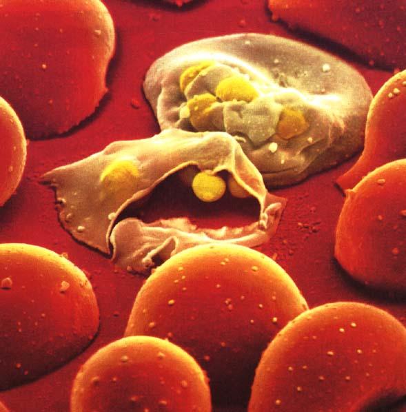 Malaria Cells